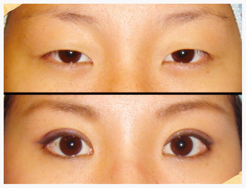 Can Asians Have Natural Double Eyelids